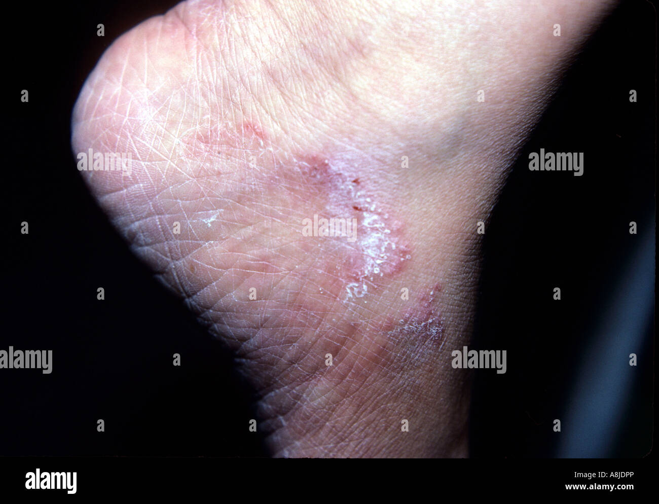 Fungal infection rash (tinea) on patient's ankle. - Stock Image