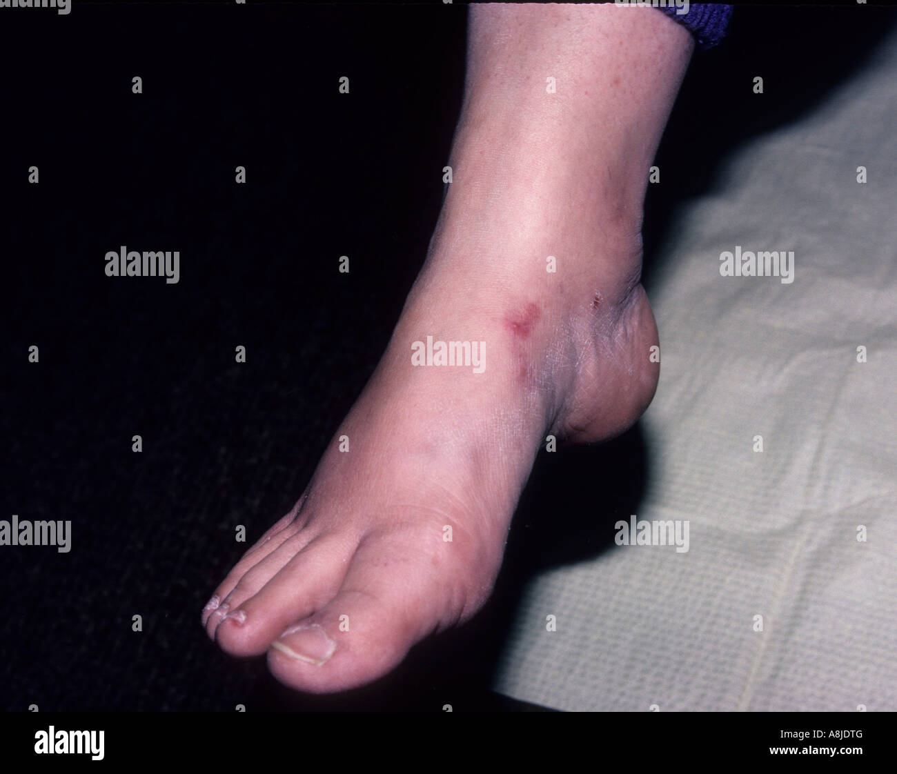 Athletes foot caused by the fungus tinea pedis, causing dry cracked heal and sole of the foot. - Stock Image