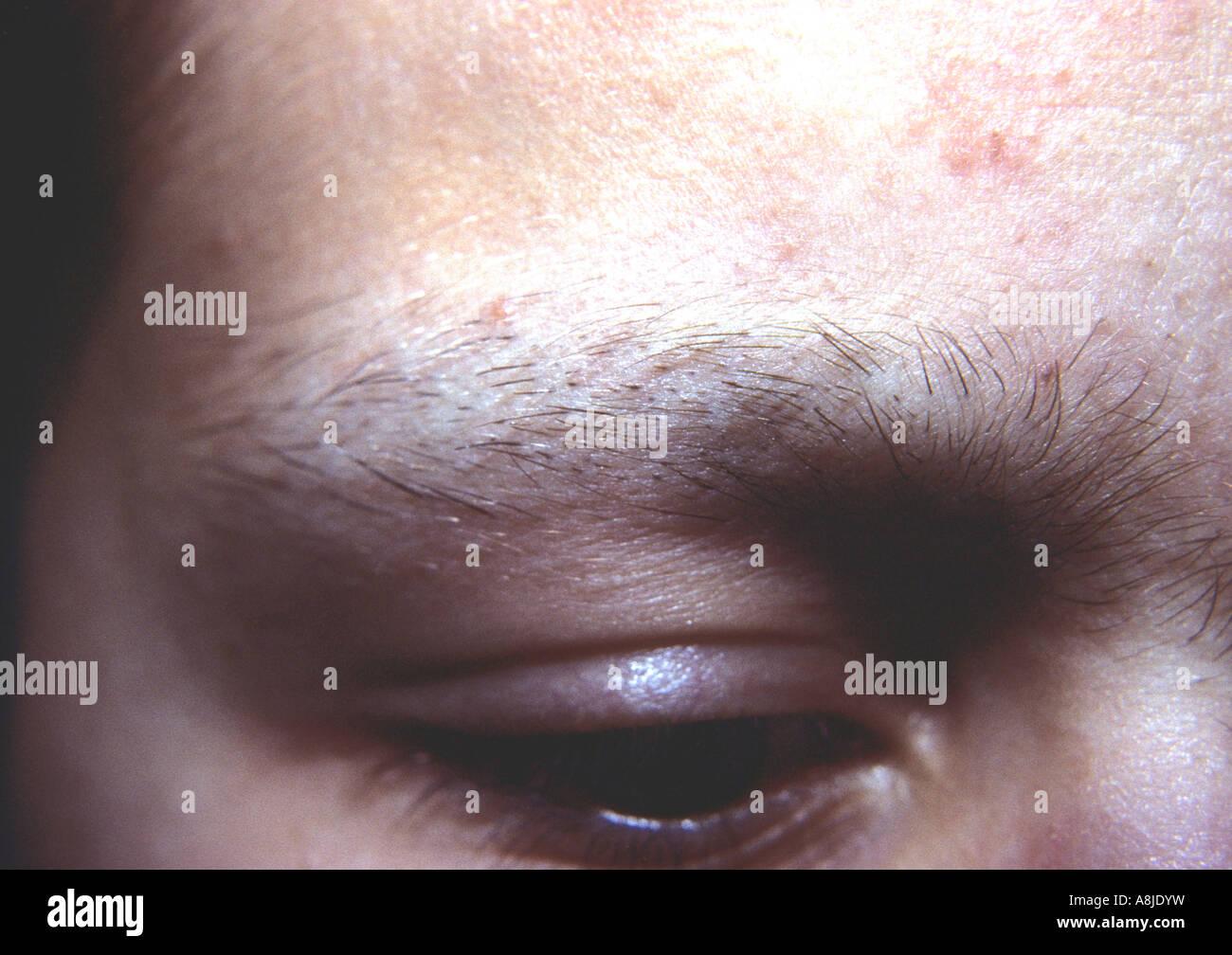 Alopecia Premature Loss Hair Patches Stock Photos Alopecia