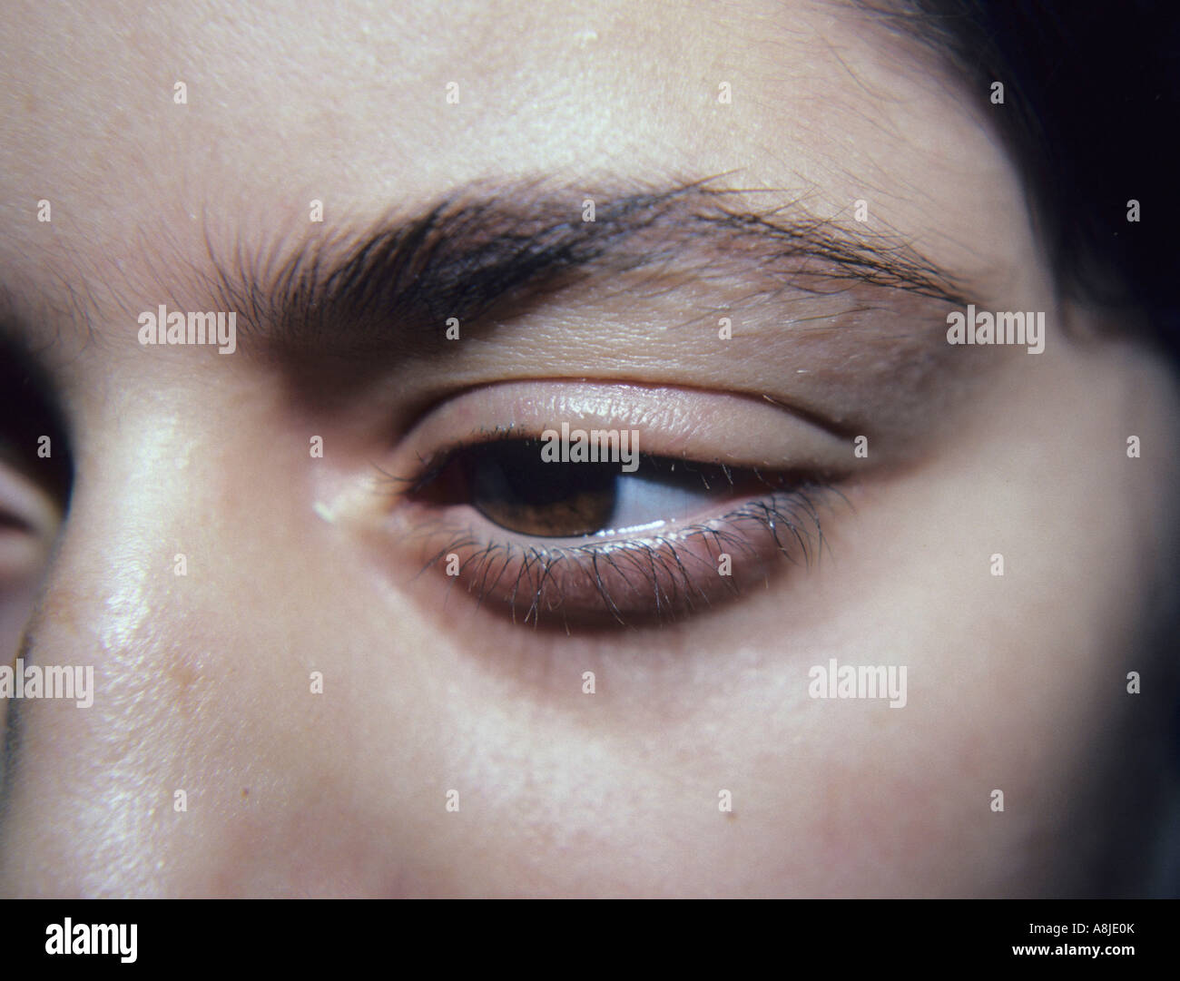 Eyebrow Alopecia Stock Photos Eyebrow Alopecia Stock Images Alamy