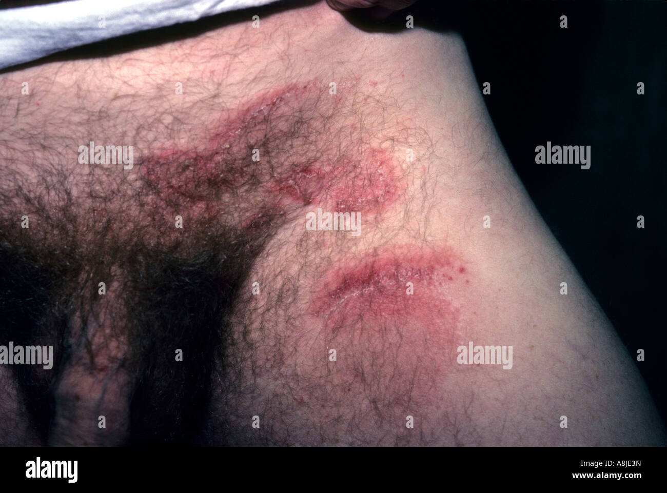 Male patient with jock-itch. Also known as ring worm in the groin area. - Stock Image