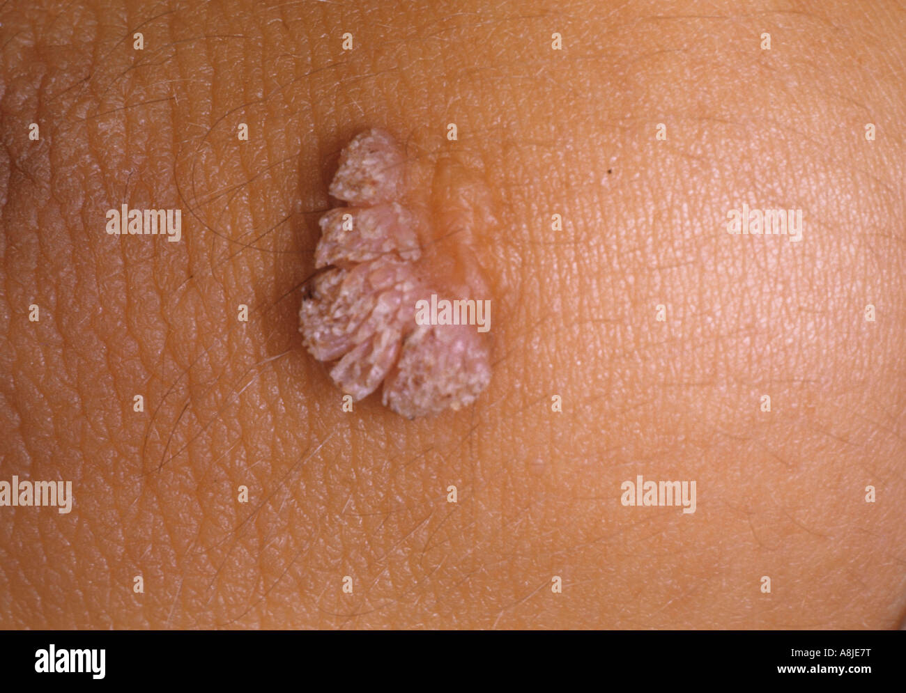 Benign epithelial hyperplasia is manifested as papules and plaques caused by the Human Papilloma Virus HPV. - Stock Image