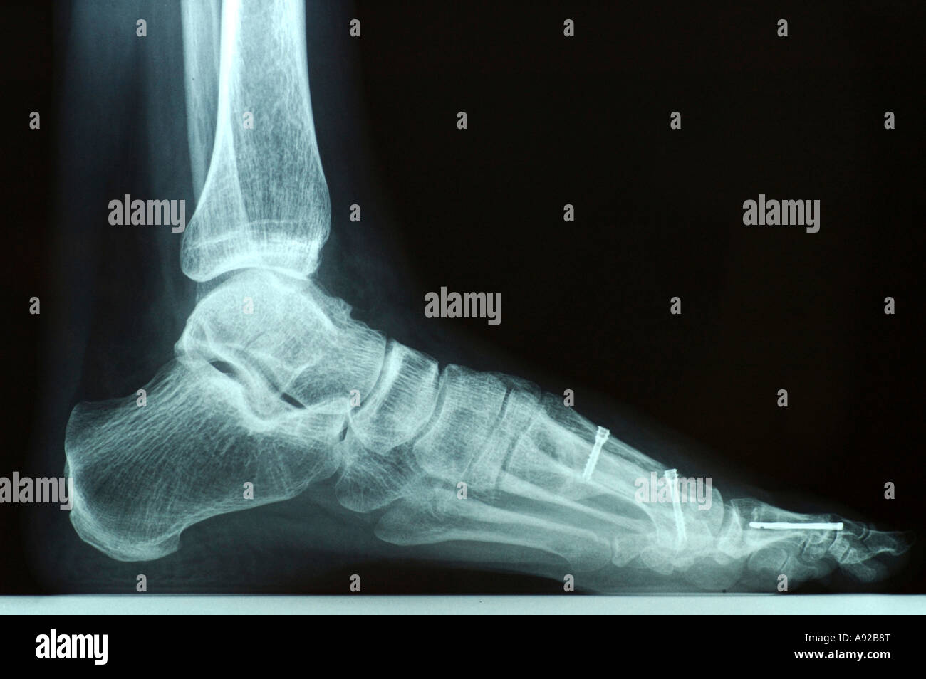 X-ray photo of a left foot after bunion surgery with screws and other hardware - Stock Image