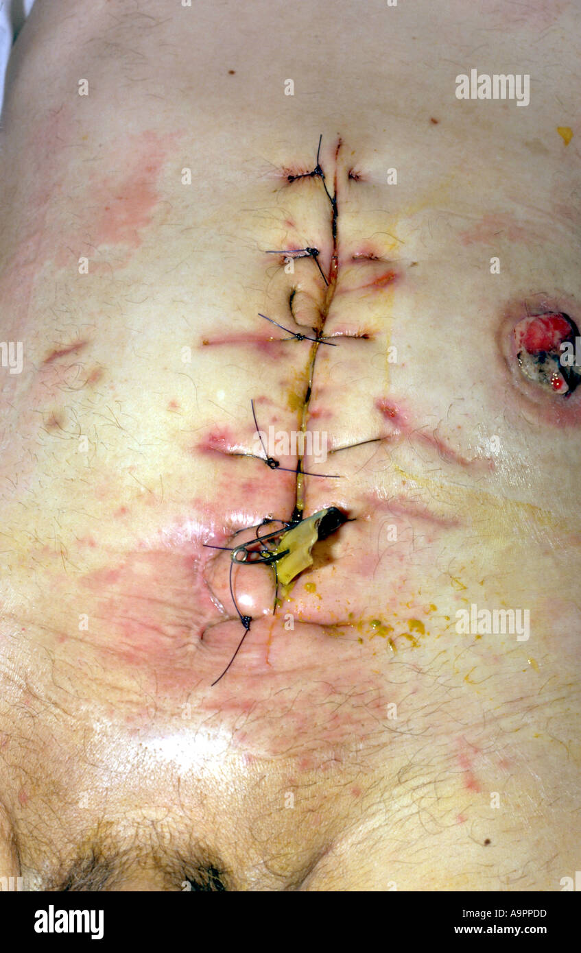 Breakdown of abdominal wound - Stock Image