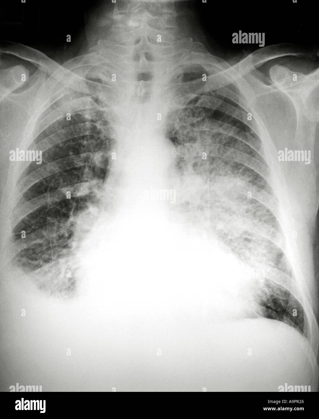 Normal chest x ray - Stock Image