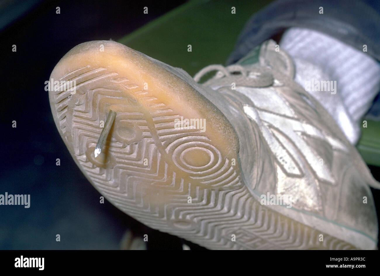Nail penetrating Injury to foot Stock Photo: 4054843 - Alamy