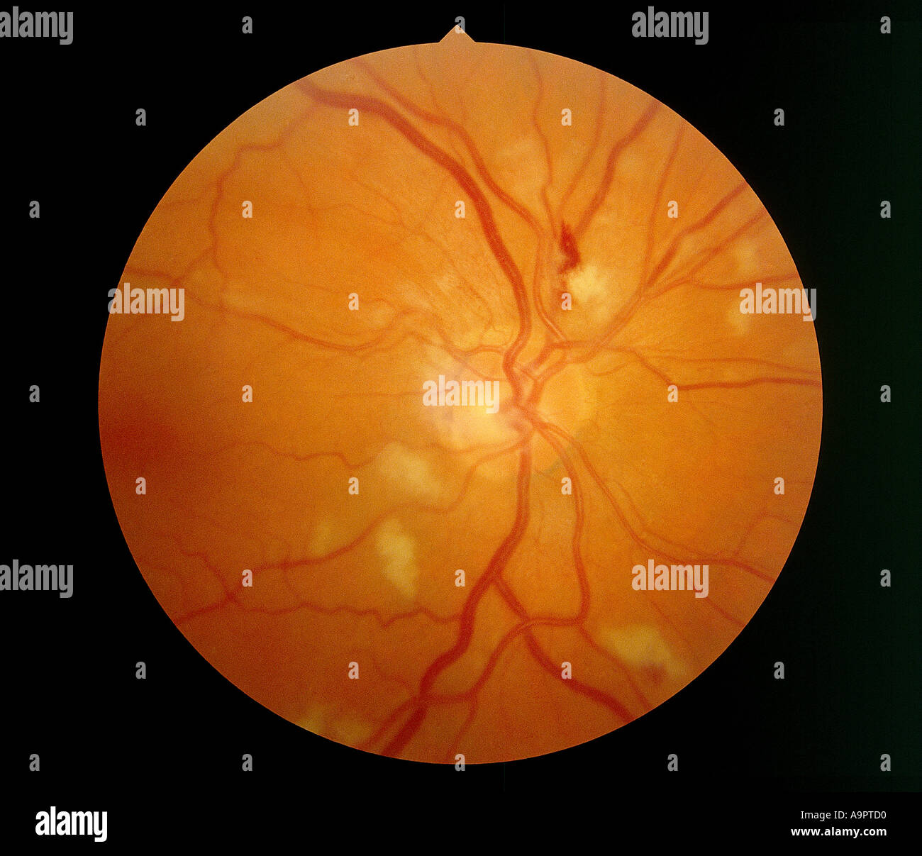 CMV retinitis Stock Photo