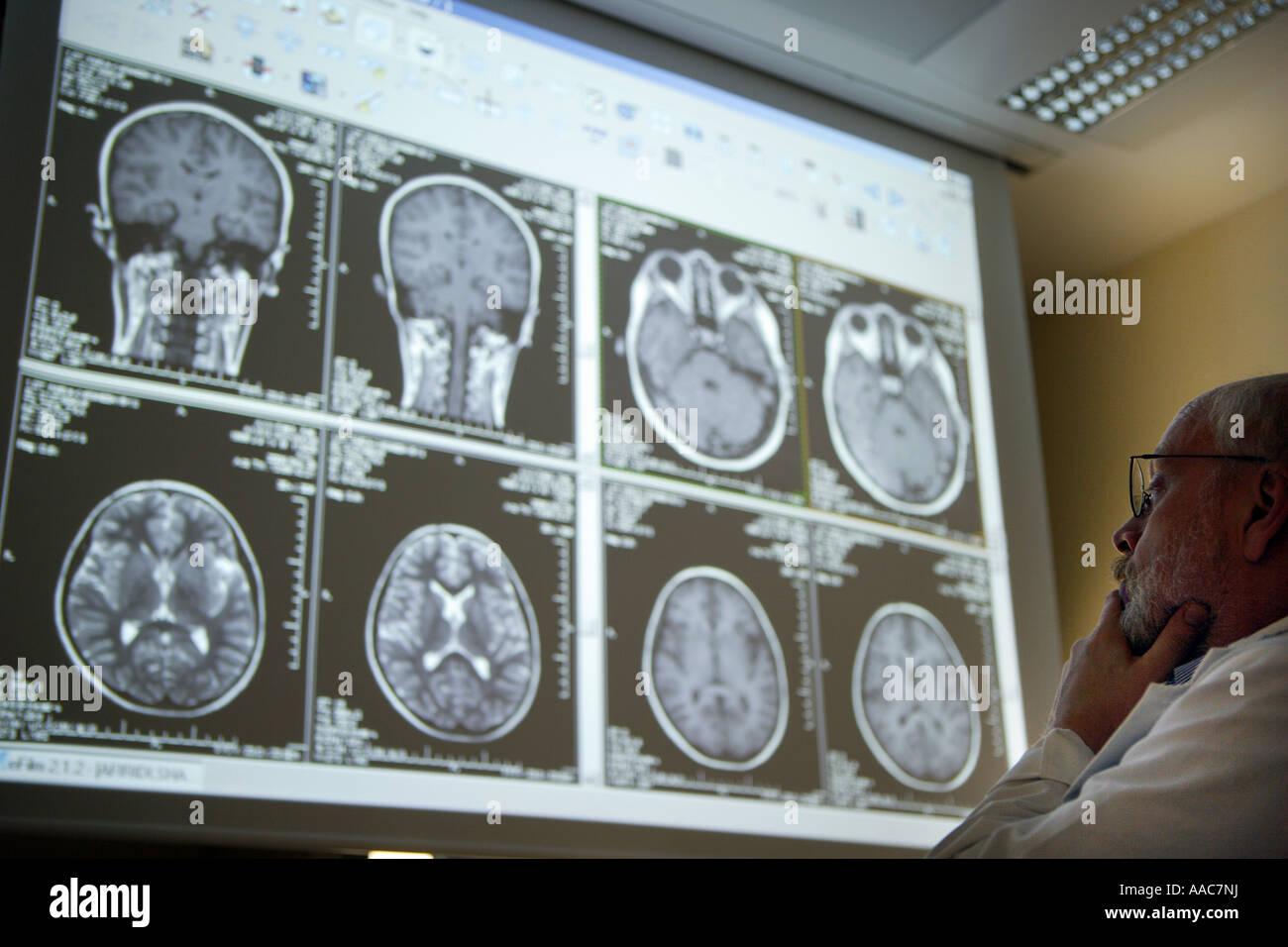 Altona children s hospital Radiologist during the evaluation of radiographs - Stock Image