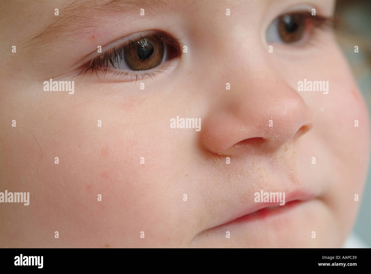 Baby Girl With Crusty Nose Stock Photo 2354232 Alamy