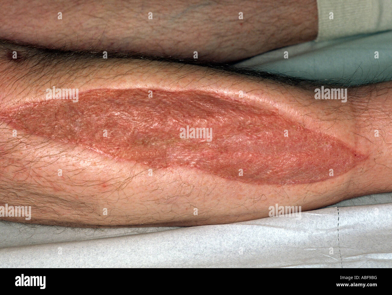 scar of fasciotomy for anterior compartment syndrome - Stock Image