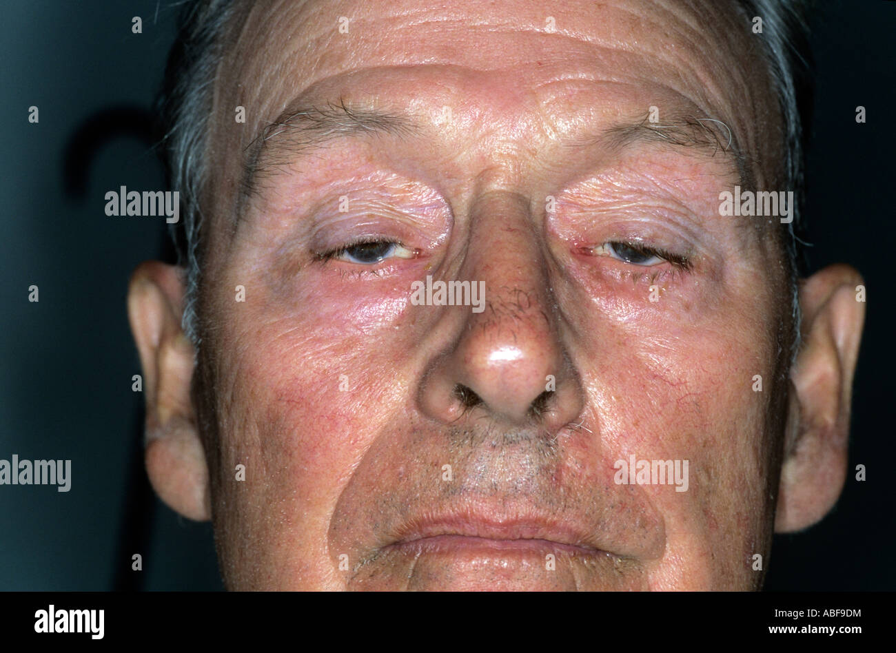 Bilateral ptosis with drooping of both upper eyelids & reduction in the width of the palpebral fissures - Stock Image