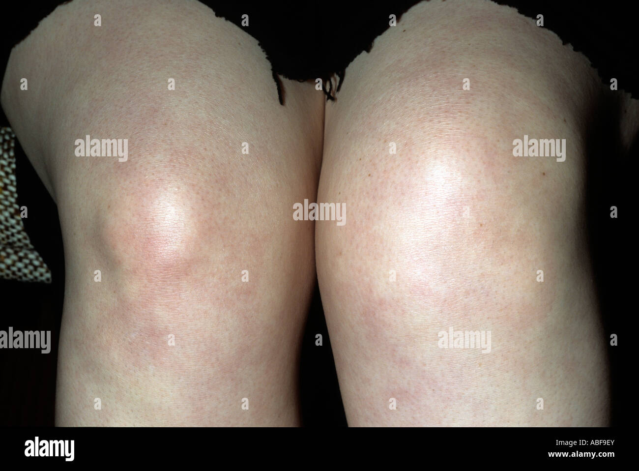 Swollen Knee High Resolution Stock Photography And Images Alamy