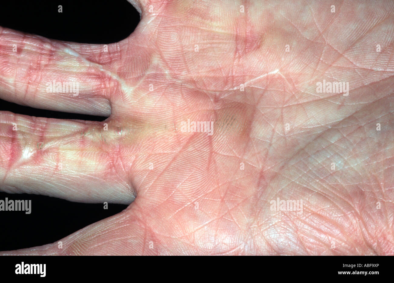 scars on hand following laceration showing some contraction - Stock Image
