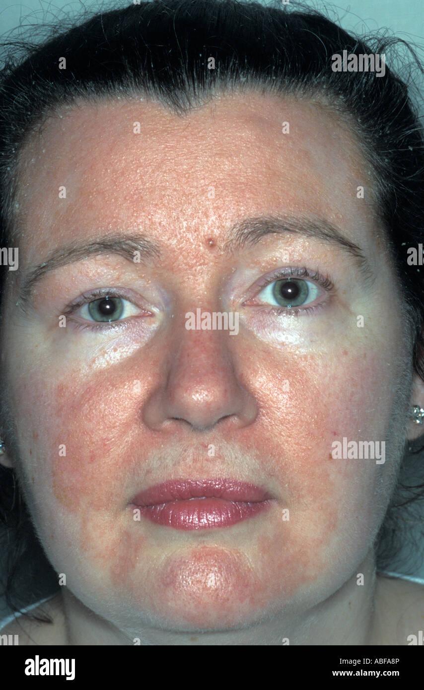 Seborrheic Dermatitis Stock Photos & Seborrheic Dermatitis Stock
