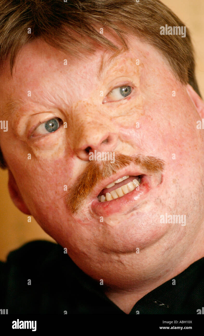 Simon Weston suffered terrible burns when RFA Sir Galahad was bombed during Falklands war 1982 while serving with - Stock Image