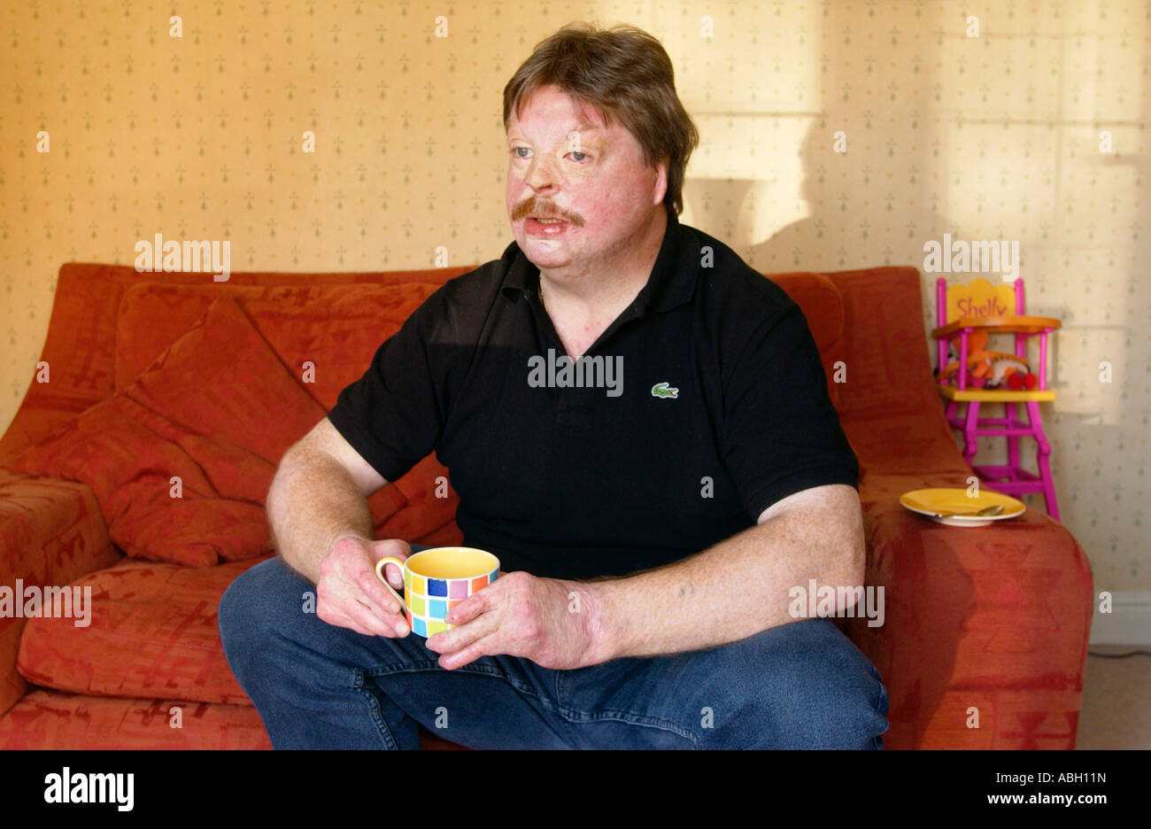 Simon Weston suffered terrible burns when RFA Sir Galahad was bombed during Falklands war 1982 while serving with Stock Photo