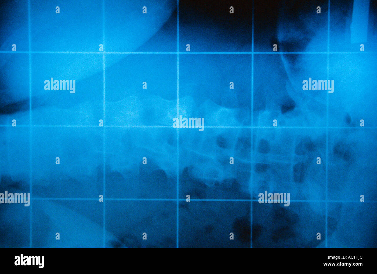 Radiogram Stock Photo
