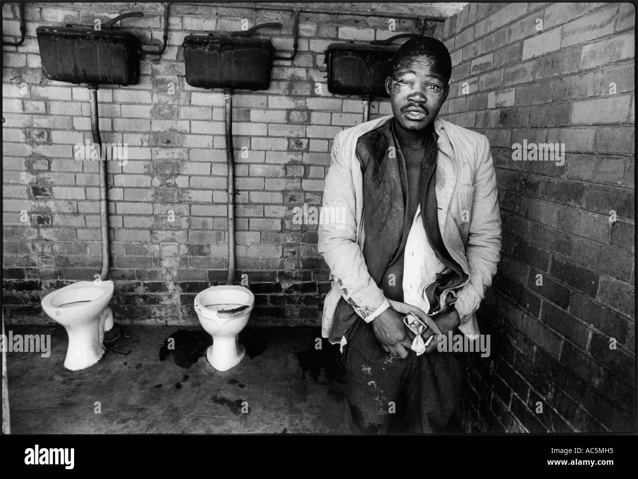 Mine worker in the single mens quarters Soweto South Africa Man had been beaten up and robbed  the shared lavatories - Stock Image