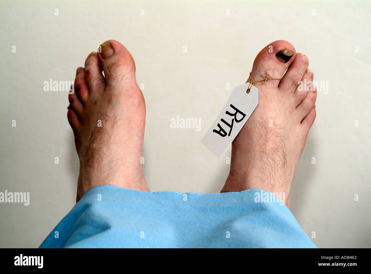 Feet of a Dead Mans Body in a Mortuary After a Fatal Car Crash. - Stock Image