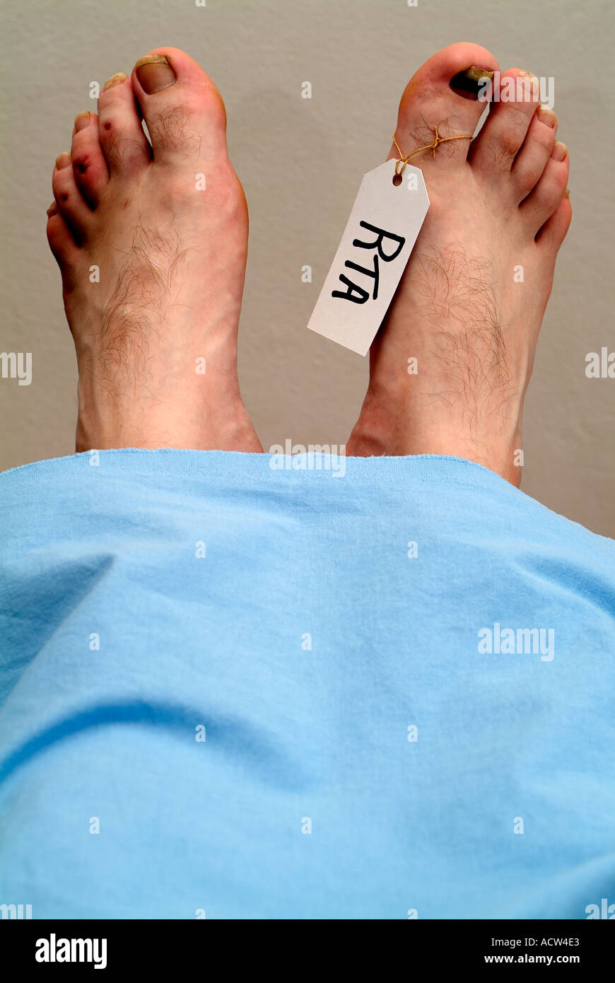Labelled Foot of a Dead Body in a Mortuary After a Fatal Car Crash - Stock Image