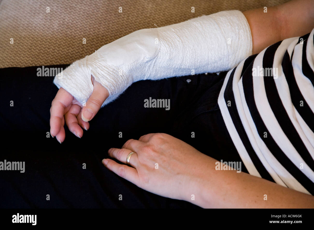 A Broken Right Arm Colles Fracture Set In Plaster From The Hand To