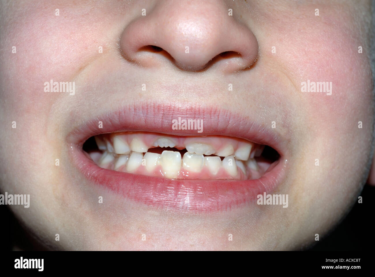 8 5 year old boy showing his 4 permanent incisors coming in - Stock Image