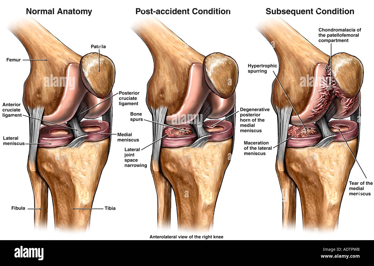 Chondromalacia - Progression of Right Knee Injury - Stock Image