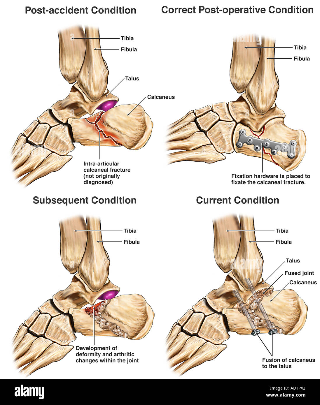 Calcaneal Fracture with Immediate Fixation v. Delayed Fusion - Stock Image
