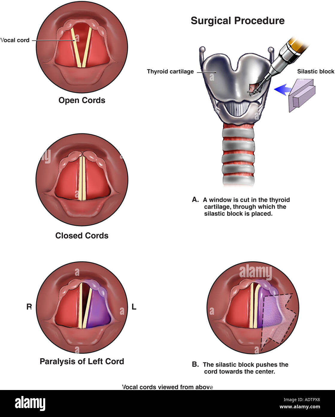 Unilateral Vocal Cord Paralysis: A Review of CT Findings ...