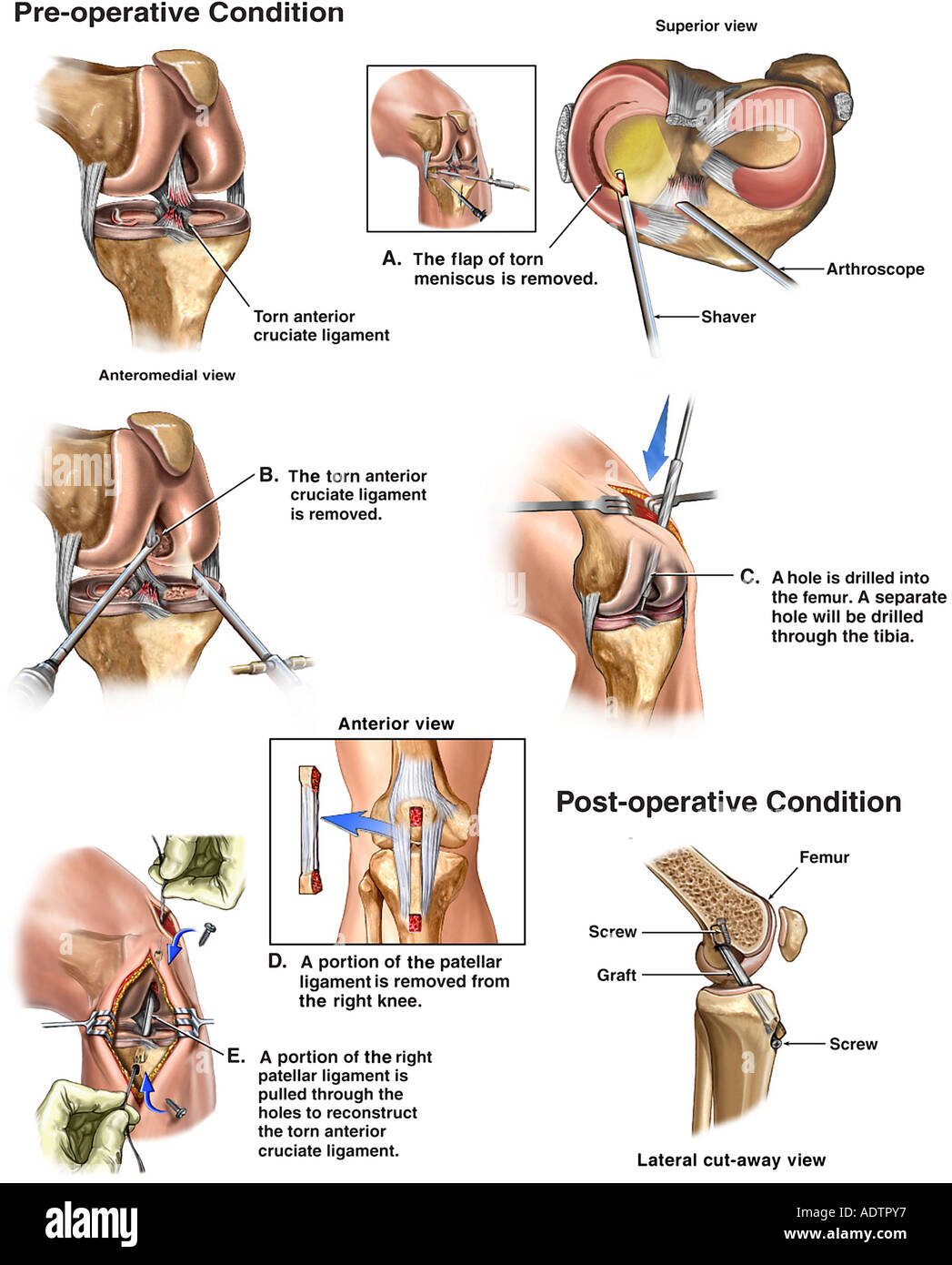 Knee surgery torn anterior cruciate ligament acl and medial knee surgery torn anterior cruciate ligament acl and medial meniscus with repairs ccuart Images