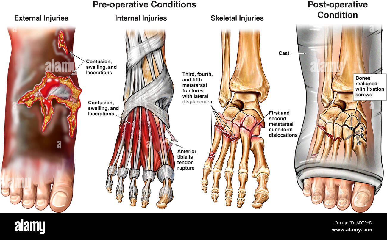 Crush Injuries of the Right Foot with Surgical Fixation Stock Photo ...