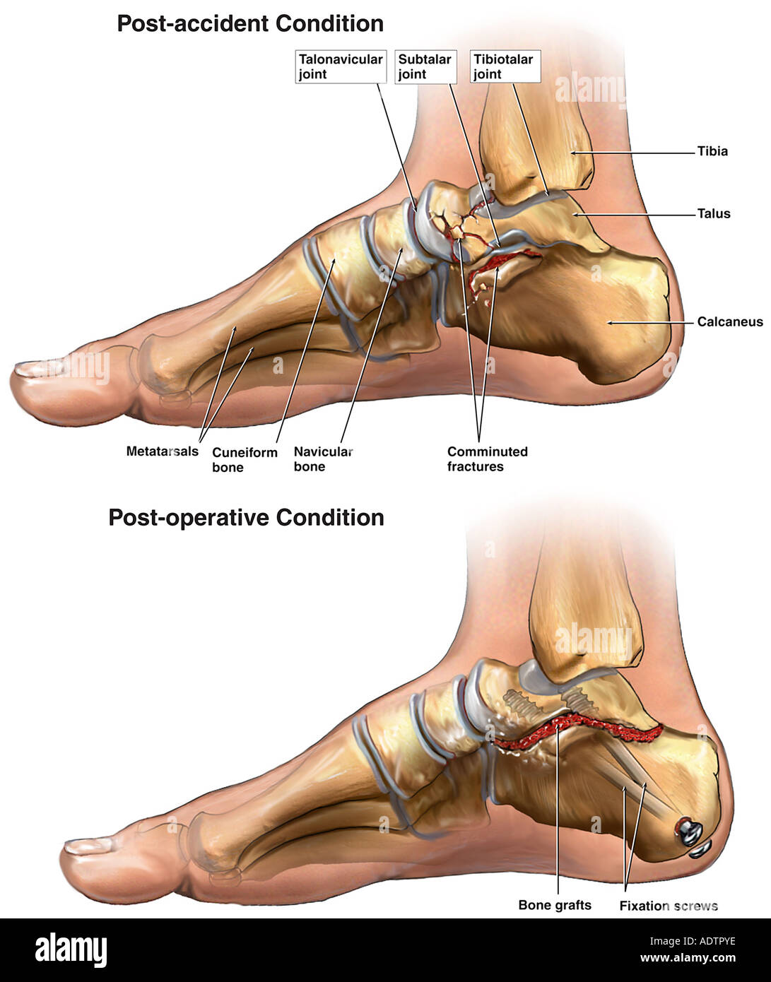 Right Foot Fractures with Surgical Repairs - Stock Image