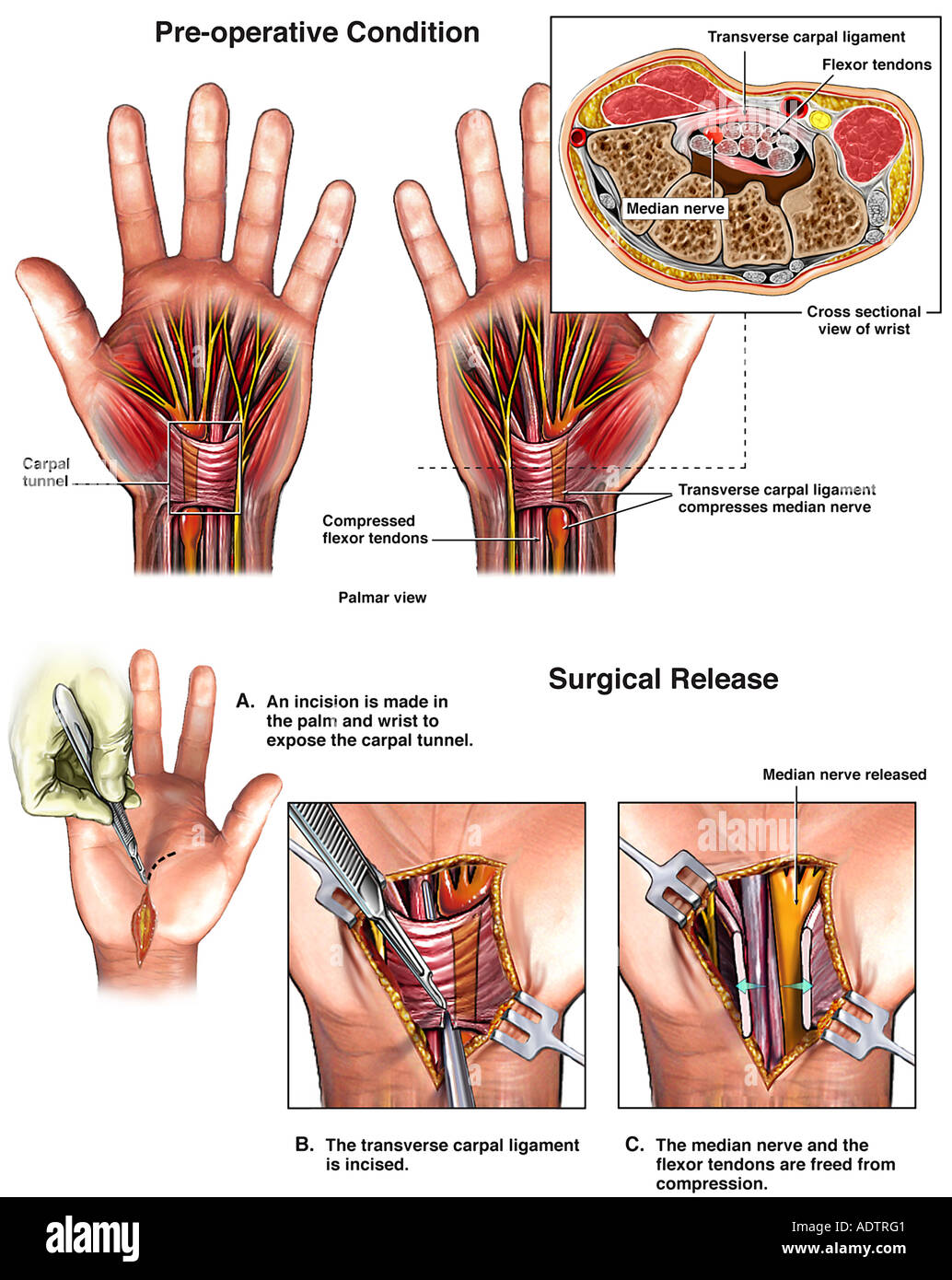 Transverse Carpal Ligament Stock Photos & Transverse Carpal Ligament ...