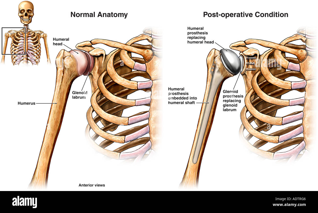 Right Total Shoulder Joint Replacement Stock Photo 7710021 Alamy