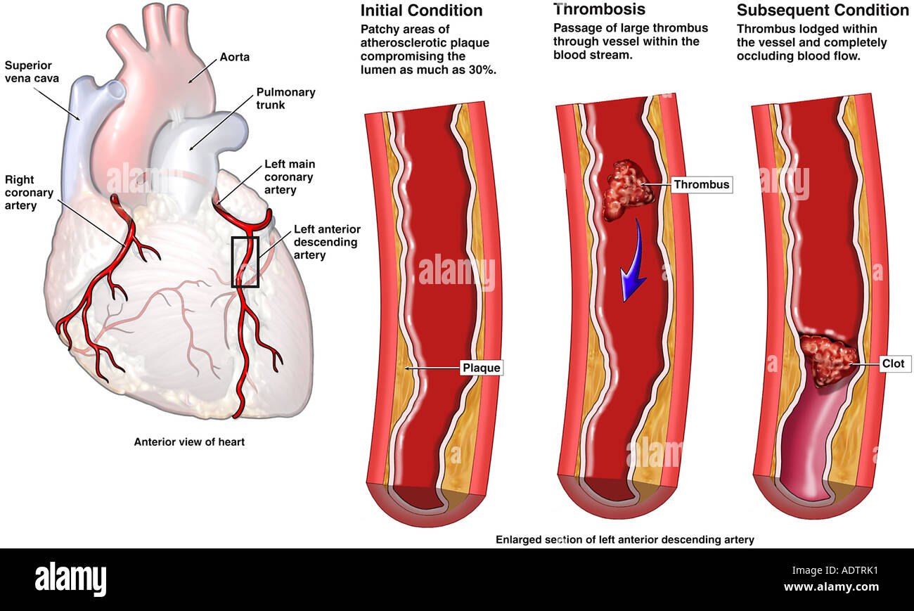 What is a thrombus