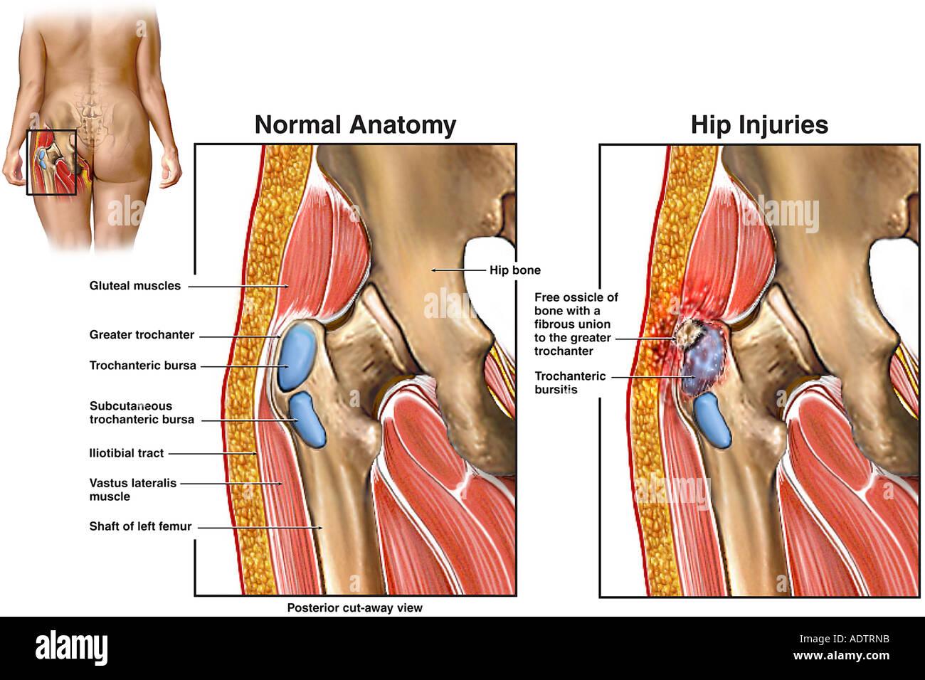 Trochanter Hip Anatomy Diagram Block And Schematic Diagrams