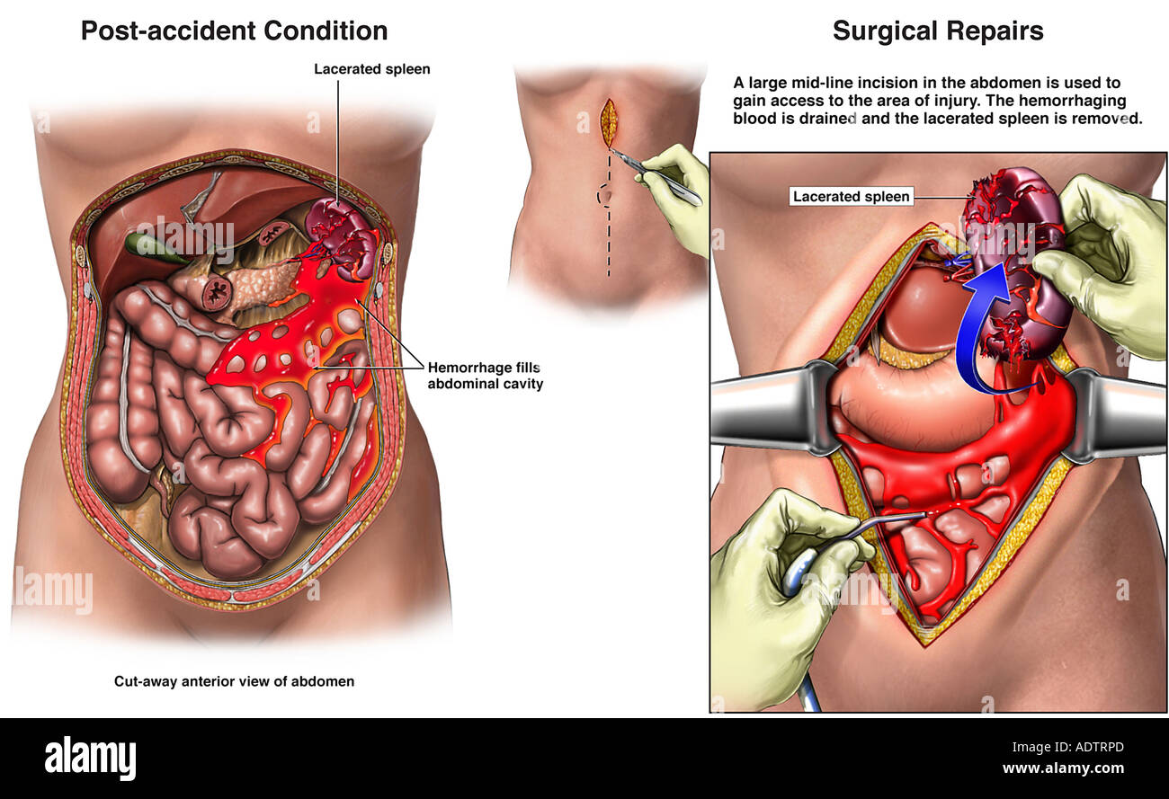 Post-accident Spleen Injury with Surgical Repairs - Stock Image