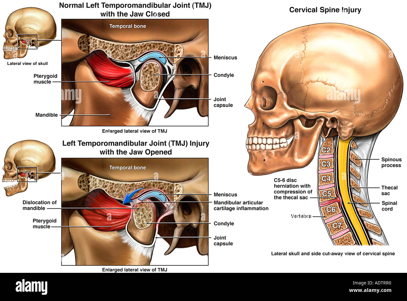Temporomandibular Joint Stock Photos & Temporomandibular Joint Stock ...