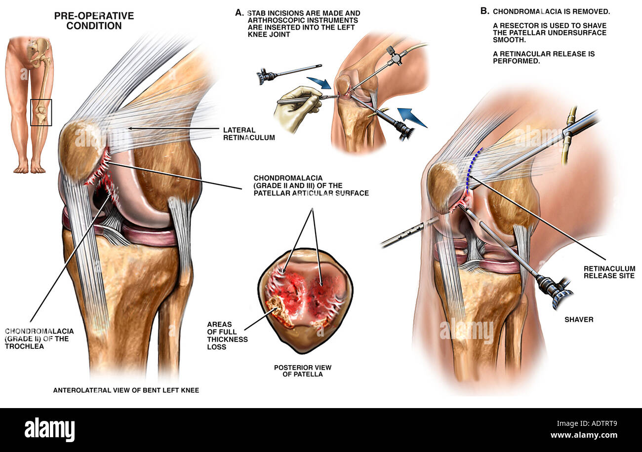 Knee Joint Anatomy Diagram Of The Left - Introduction To Electrical ...