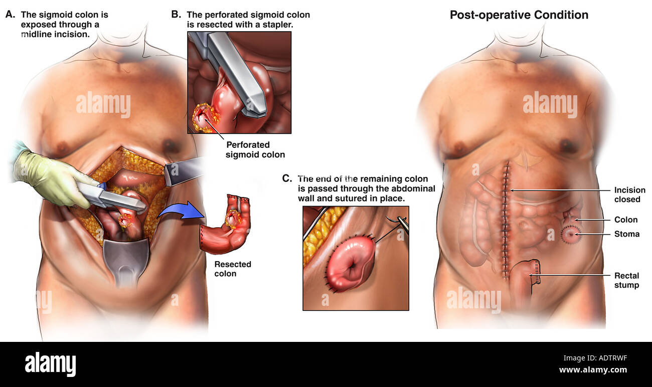Bowel Surgery - Colon Resection and Colostomy Procedure Stock Photo