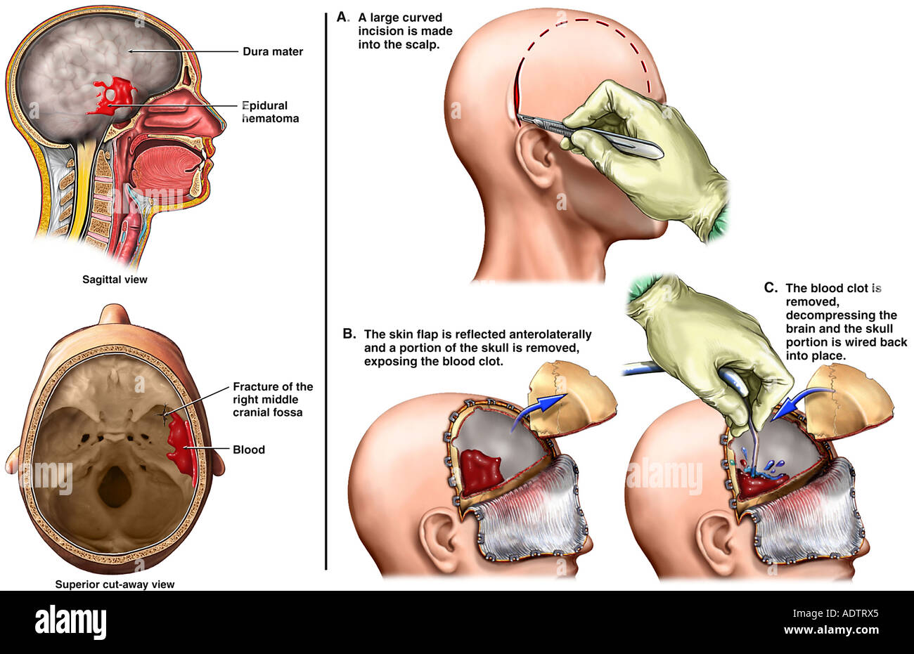 Brain Surgery - Severe Post-accident Head Injury with Removal of ...