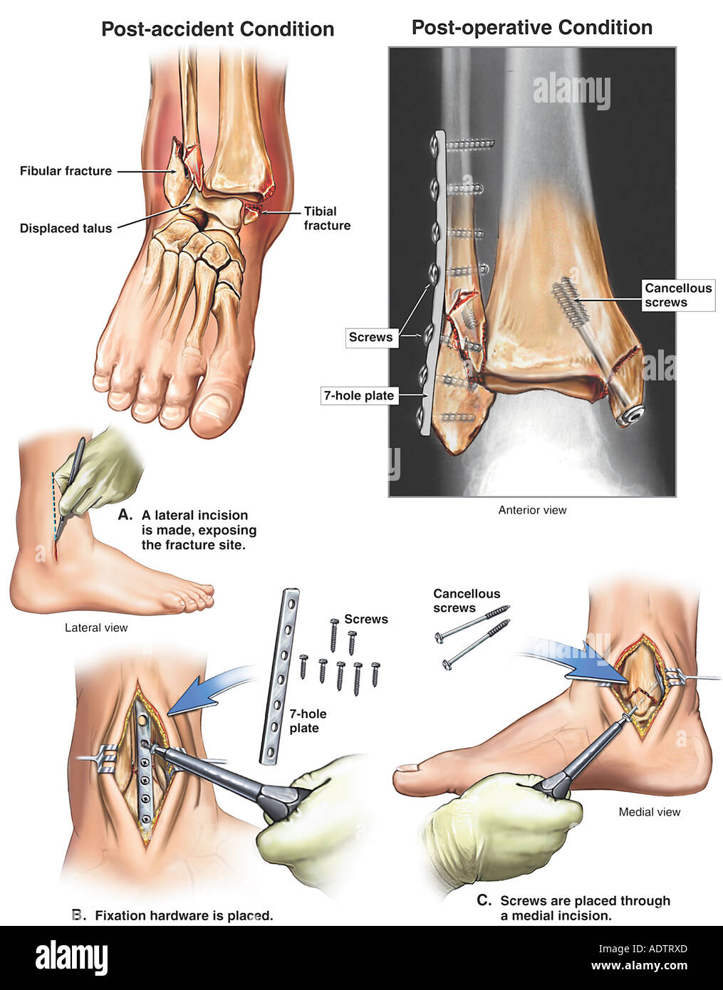 Broken Ankle - Displaced Trimalleolar Fractures with Fixation Surgery - Stock Image