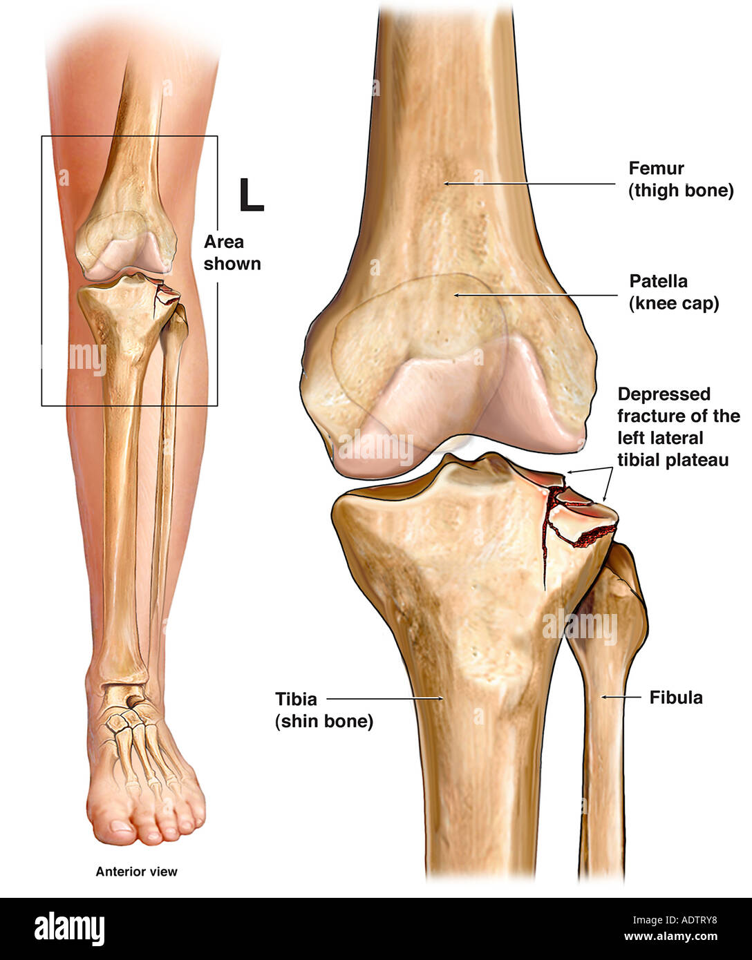 Left Knee Tibial Plateau Fracture Stock Photo: 7710199 - Alamy