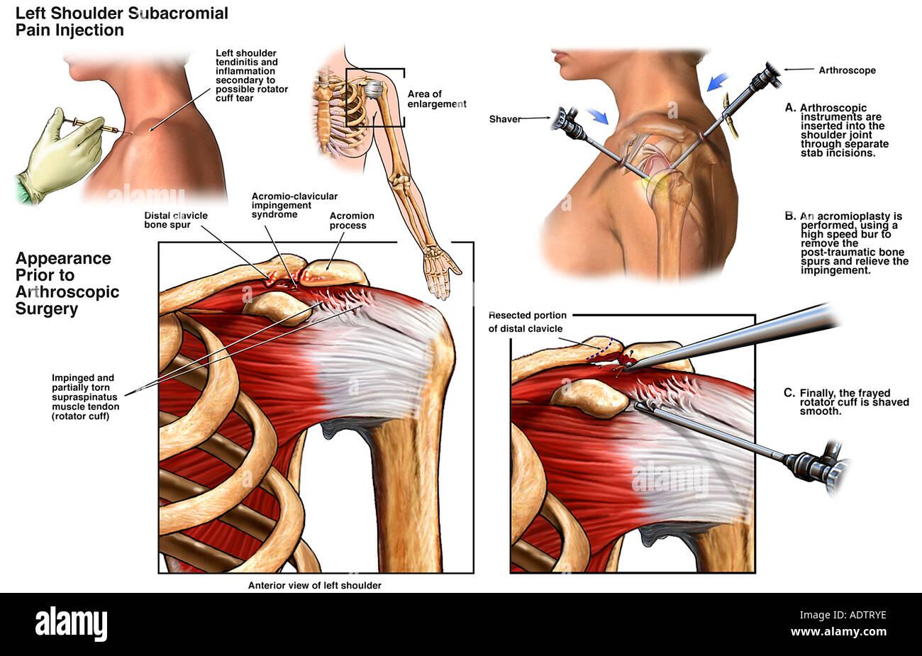 Left Shoulder Arthroscopic Subacromial Decompression Surgery Stock ...