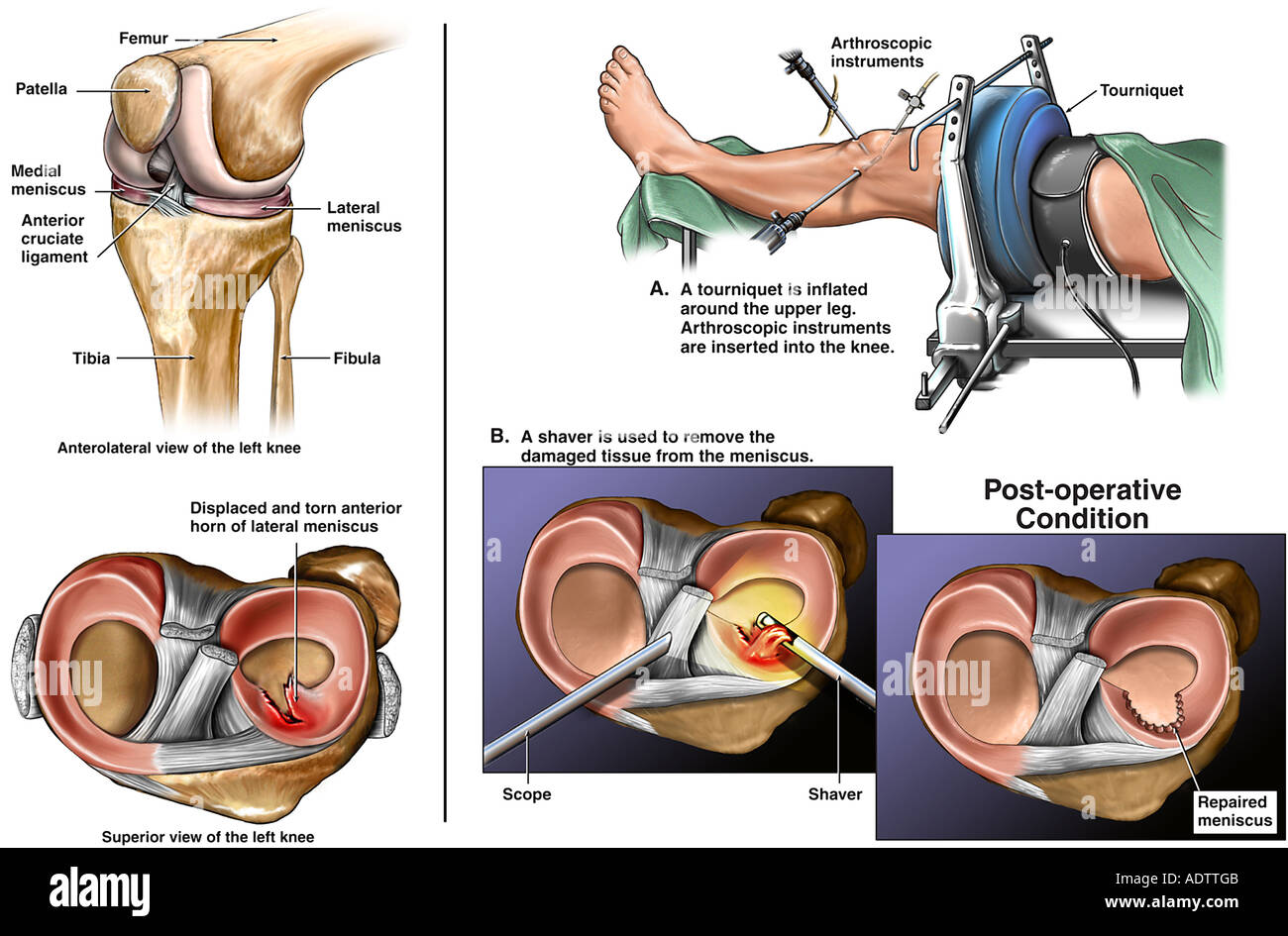 Lateral Meniscus Stock Photos & Lateral Meniscus Stock Images - Alamy
