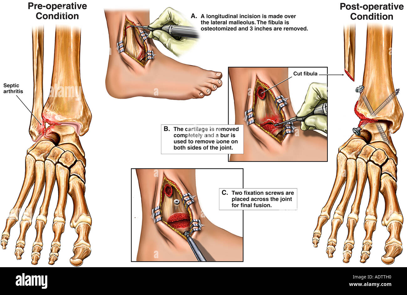 Lateral Malleolus Stock Photos & Lateral Malleolus Stock Images - Alamy
