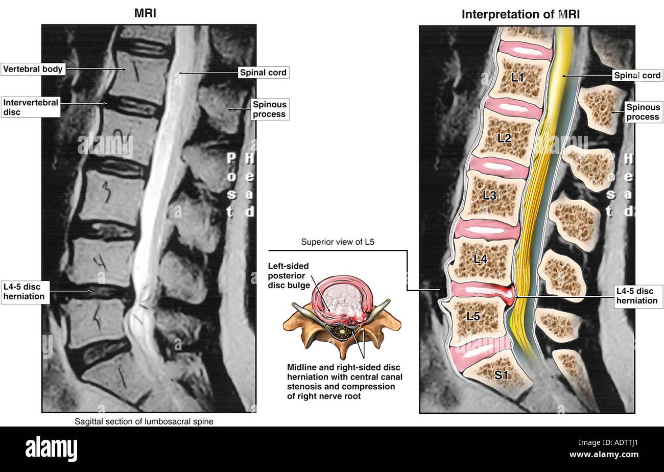 Lumbar Disc Injuries - Stock Image