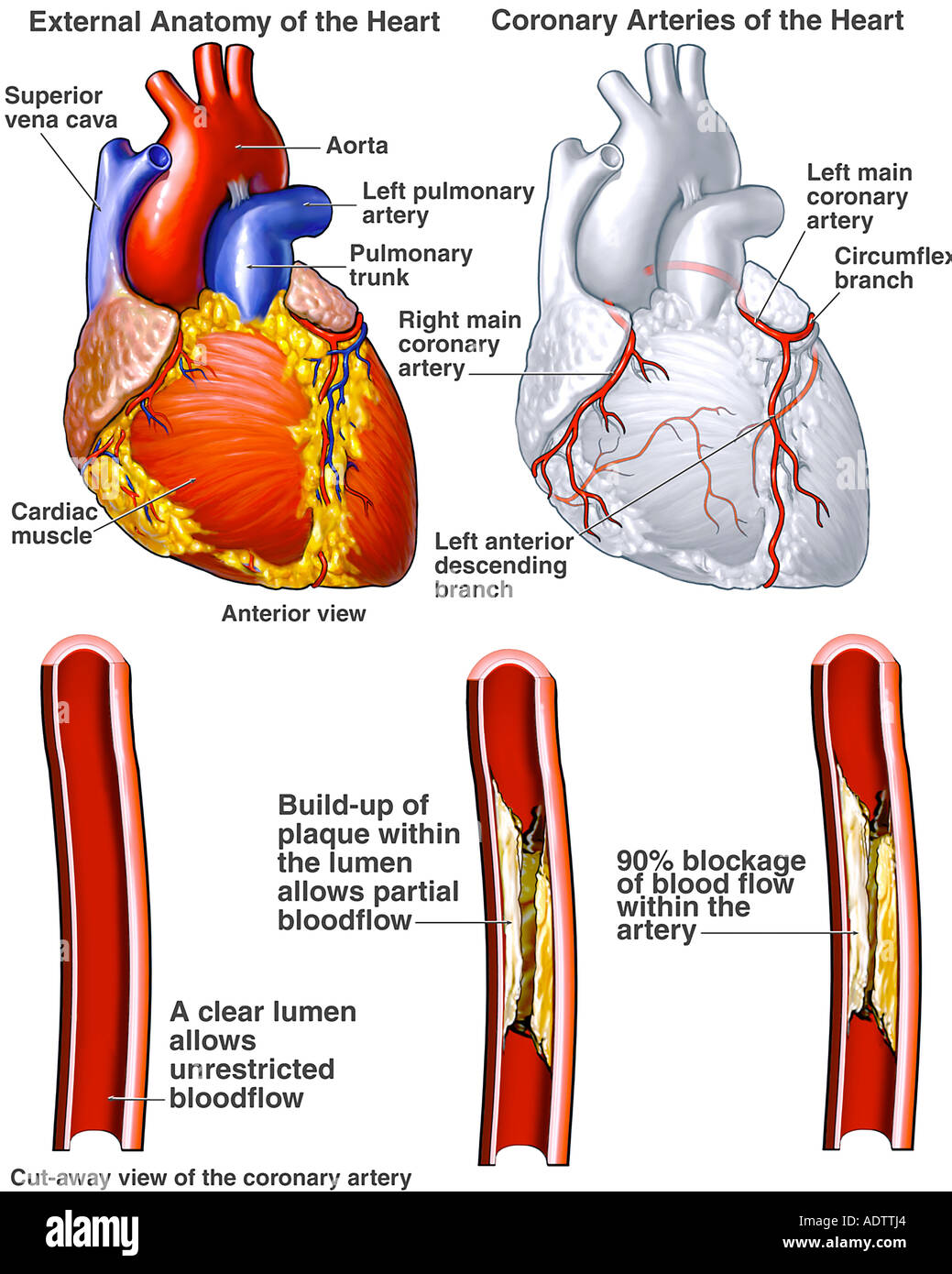 Heart - Coronary Arteries with Potential Blockages - Stock Image