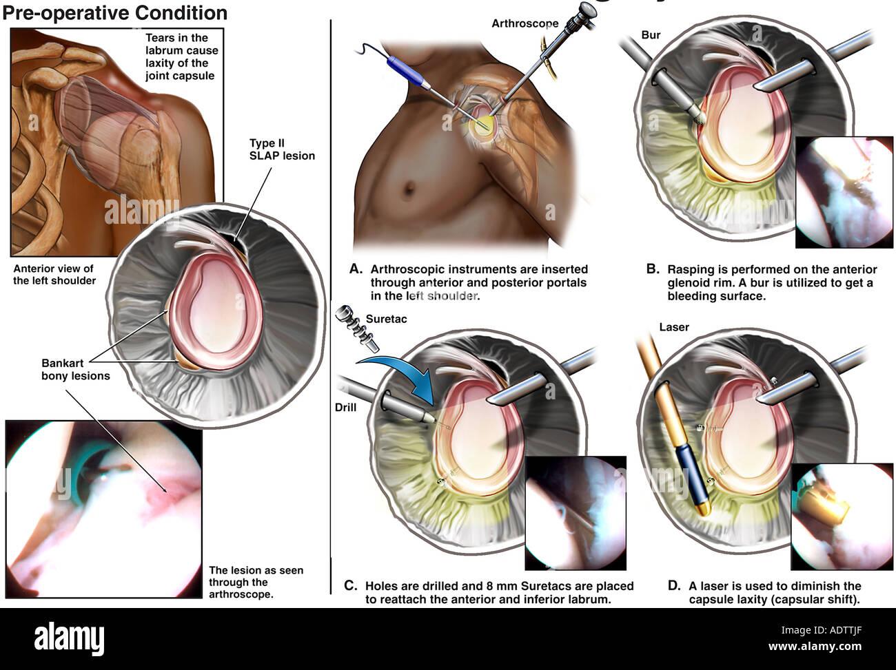 Shoulder Surgery - Stock Image