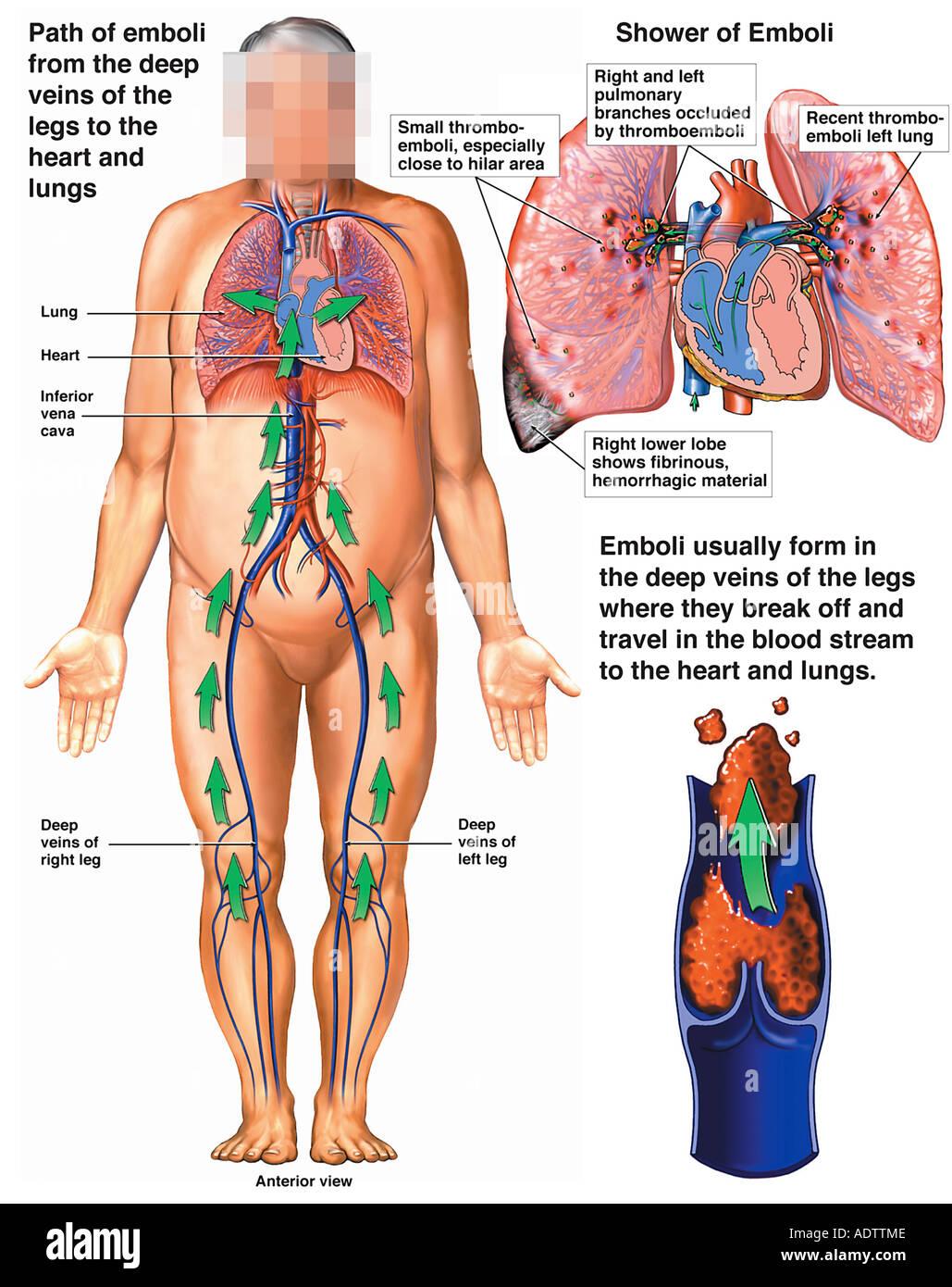 Mechanism Of Pulmonary Embolism